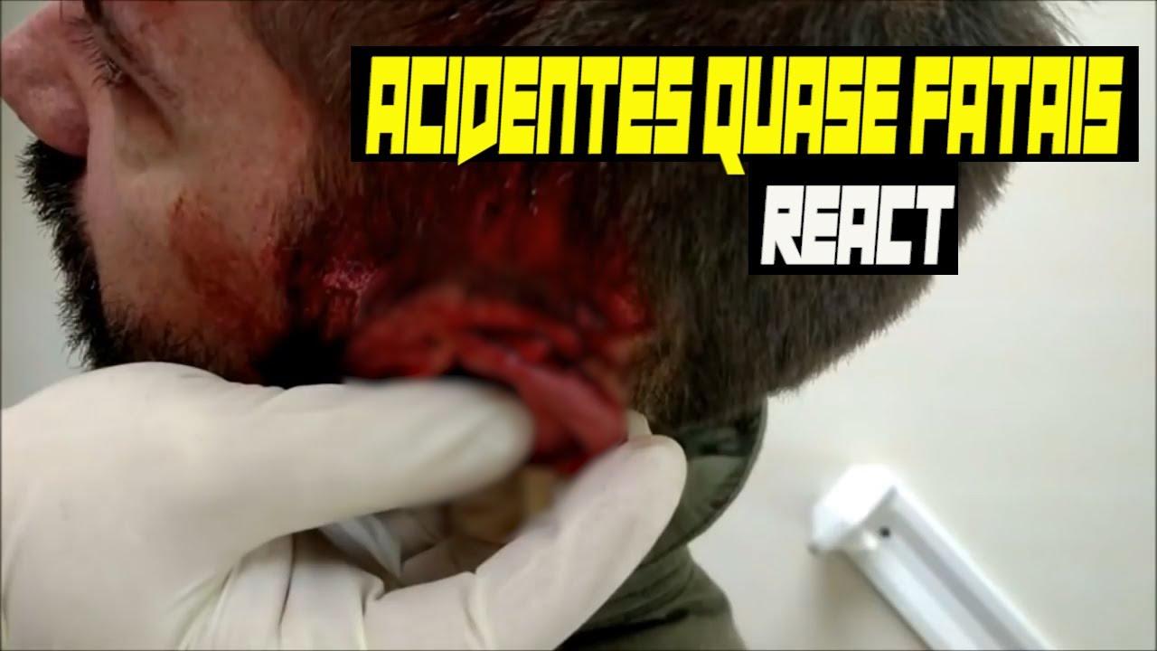 Les accidents presque mortels chez AIRSOFT 18+ réagissent